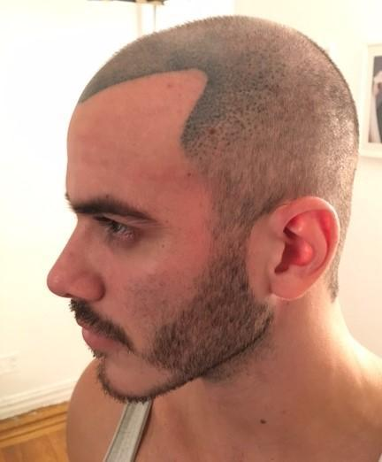 Scalp Tattoos Are Not The Answer